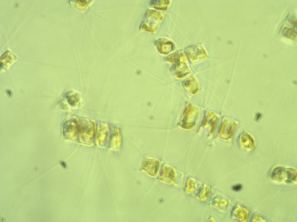 Chaetoceros sp.--another centric diatom, but this genera has long spines (called setae) growing out of each cell. These spines connect individual Chaetoceros cells into long chains.
