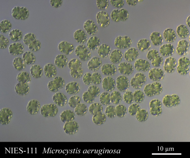 A microscope image of Microcystis aeruginosa, collected from a eutrophic lake in Japan. Image from http://www.shigen.nig.ac.jp/algae/strainDetailAction.do?stockNo=NIES-111.