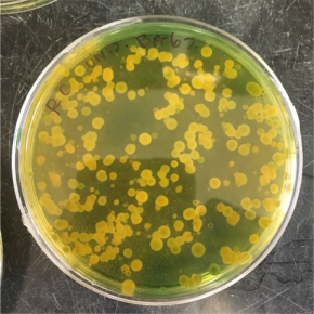 Uh oh, Vibrio: Not your grandma's bloomers